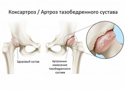 Что такое коксартроз тазобедренного сустава