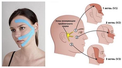 Воспаление тройничного нерва (невралгия)