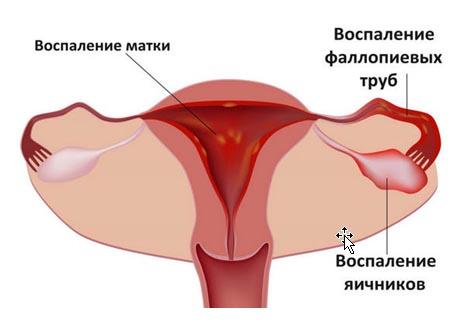 Воспаление яичников (Оофорит)