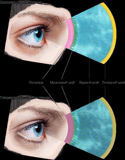Синдром сухого глаза лечение препараты симптомы thumbnail