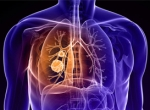 ХОБЛ (хроническая обструктивная болезнь легких)