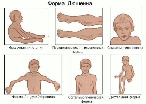 Миопатия (мышечная дистрофия)