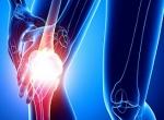 Растяжение связок коленного сустава