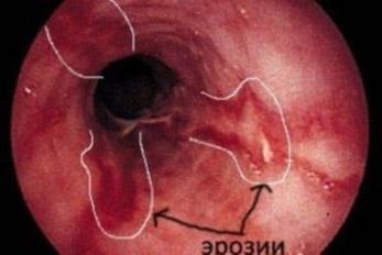 Эзофагит (воспаление пищевода)