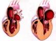 Гипертрофия левого желудочка сердца, правого желудочка