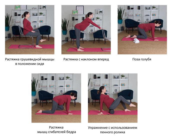Упражнения для беременных при защемлении седалищного нерва