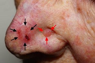Рак крыла носа код мкб