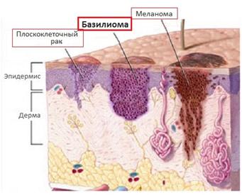 Базалиома кожи