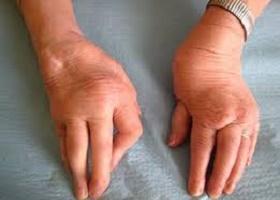 Фото симптомов бруцеллеза у человека