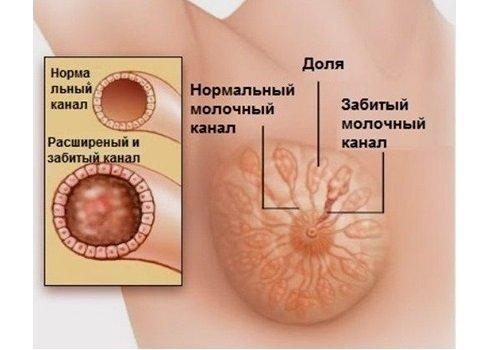 Как проявляется лактостаз
