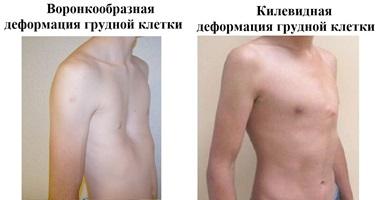 Виды деформации грудной клетки