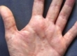 Грибок на руках