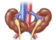 Подковообразная почка и синдром Поттера (аномалии развития почек)
