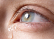 Дакриоаденит, воспаление слезного канала