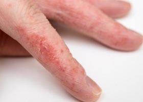 Фото грибка на пальцах рук