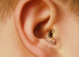 Отомикоз, грибок в ушах