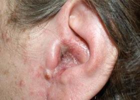 Фото ушного грибка у человека