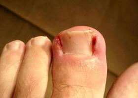 Фото вросшего ногтя на большом пальце ноги