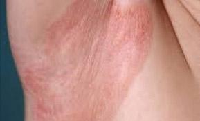 Микоз кожи (грибок)