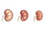 Нефросклероз (сморщенная почка)
