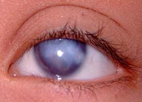 Бельмо на глазу (лейкома, паннус, помутнение роговицы)