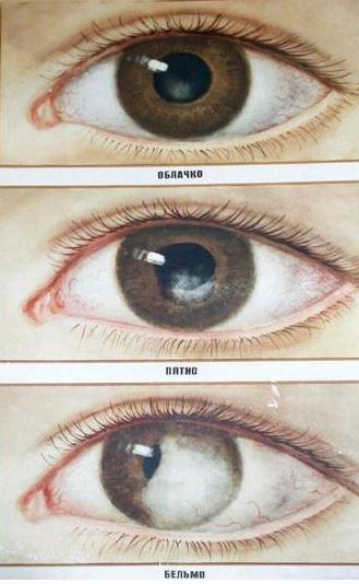 Бельмо глаза кератит и лечение thumbnail