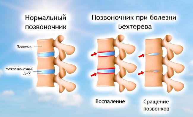 Позвоночник при болезни Бехтерева
