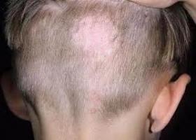 Фото грибка на голове у ребенка