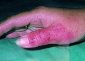 Болезнь рожа на руке, фото начальной стадии
