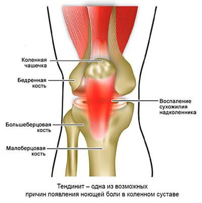 Тендинит (воспаление сухожилия)