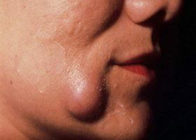 Фото жировика на лице