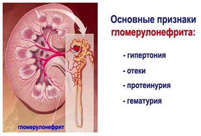 Нефрит (воспаление почек)