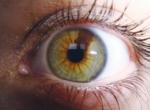 Гетерохромия глаз