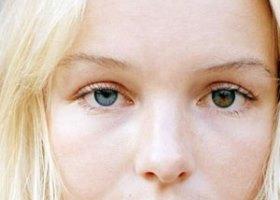 Фото гетерохромии глаз