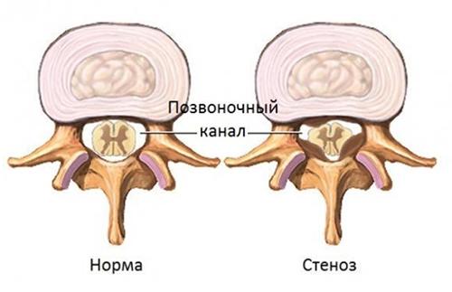 Cтеноз позвоночного канала