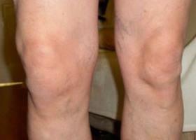 Фото симптомов артроза коленного сустава
