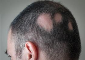 Трихофития (дерматомикоз, дерматофития)