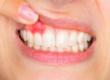 Периостит (флюс на десне, щеке, зубной)