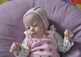 Фото новорожденных c синдромом Эдвардса