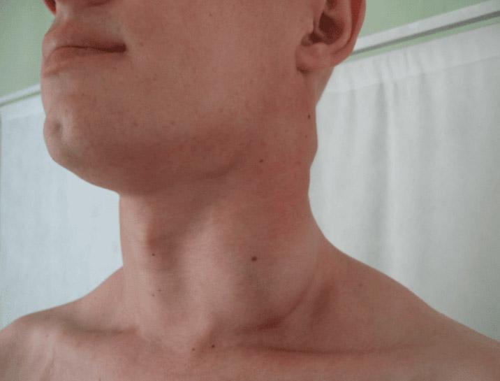 Лимфосаркома, рак лимфоузлов и лимфатической системы