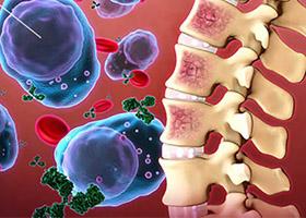 Миеломная болезнь (миелома)
