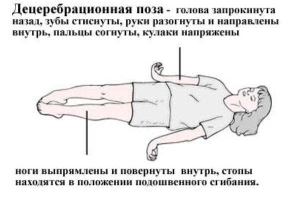 Лейкодистрофия