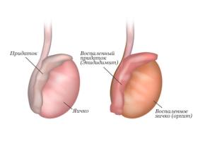 Симптомы эпидидимита