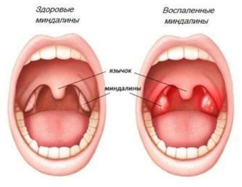 Гнойные пробки, белый налет, воспаление и увеличение миндалин