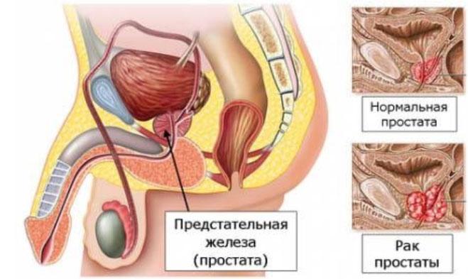 Рак предстательной железы (рак простаты)