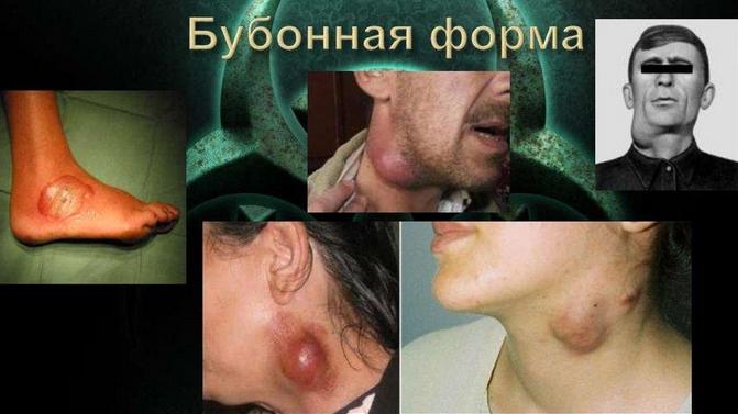 Чума (бубонная чума)
