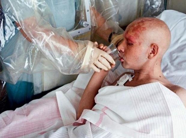 Лучевая болезнь (облучение радиацией)