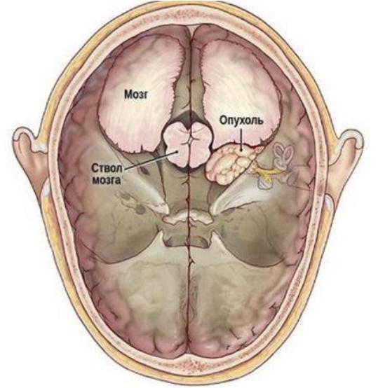Невринома слухового нерва (шваннома)