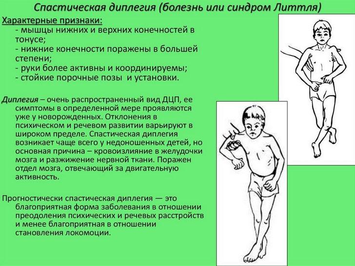 Парапарез, параплегия, спастический тетрапарез и болезнь Штрюмпеля