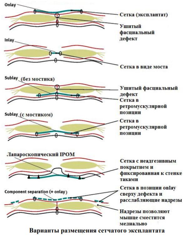 Послеоперационная вентральная грыжа